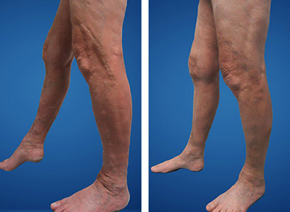before vein treatment at vein nevada