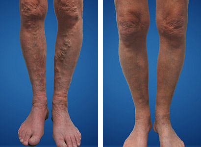 before after vein treatment