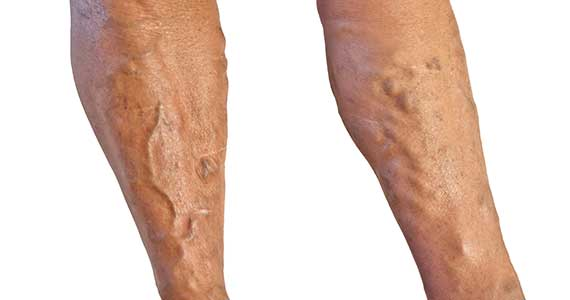 venous disease, varicose veins, heavy legs, tired legs, leg pain, leg bumps are they cosmetic?, chronic venous insufficieny CVI, reno, sparks, carson city, nevada vein center