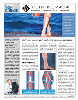 chronic venous insufficiency, varicose veins, leg cramps, leg swelling, reno, sparks, carson city