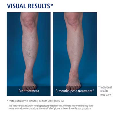 before and after image of radiofrequency ablation treatment for venous disease at Vein Nevada in Reno, Sparks and Carson City.