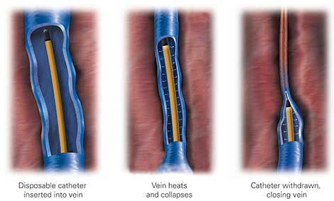 venefit procedure, venefit by covidien, radiofrequency ablation for varicose veins
