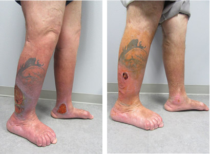 radiofrequency ablation, rfa reno, phlebectomy reno, phlebectomy sparks, before after vein treatment